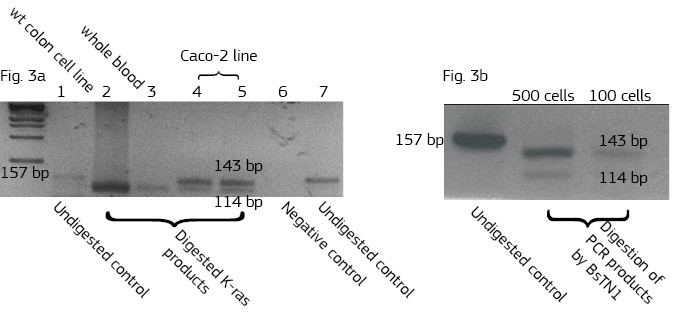 Screening of colon carcinoma lines for the presence of mutation in 12h codone of K-ras oncogene by PCR using primers that introduce BsTN1 restriction enzyme sites into PCR products.